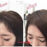 前髪が浮くのが悩みのくせ毛を直す自然な縮毛矯正☆