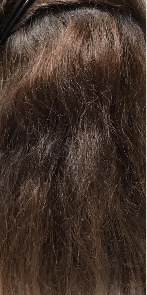 波状毛の画像
